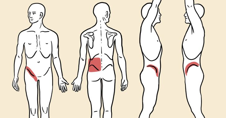 Area tubuh yang nyeri saat mengalami batu ginjal