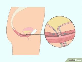Senam kegel untuk menguatkan otot dasar panggul