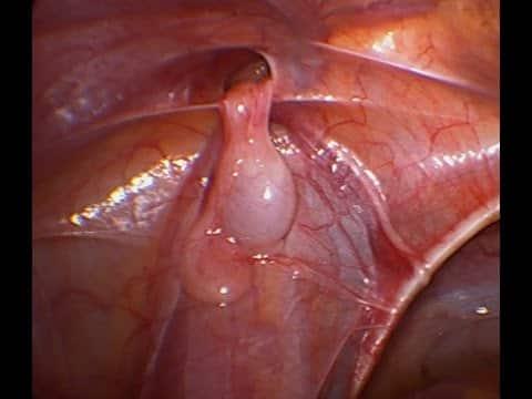 Testis berada di dalam perut
