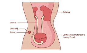 neobladder